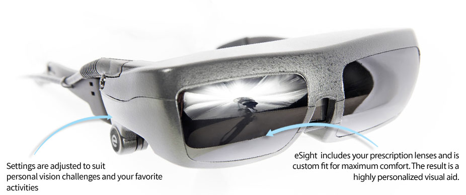 New Esight Eyewear Offers Hope For The Visually Impaired