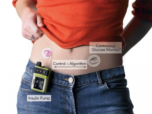Medtronic Minimed Is A Wearable Artificial Pancreas